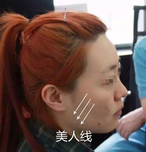 面部埋线提升多久可以消肿?