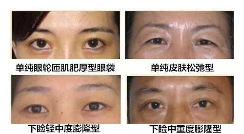 哪里做祛眼袋手术效果比较好?