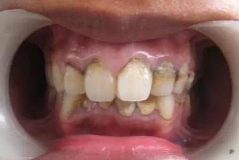 洗牙都有哪些好处?