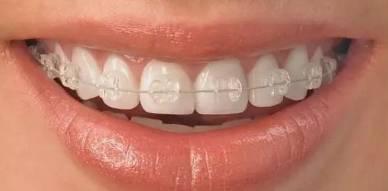 牙齿矫正可以改变脸型吗?