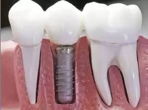 种植牙是不是特别贵啊?