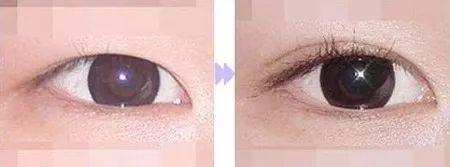 做完双眼皮多久可以恢复自然?