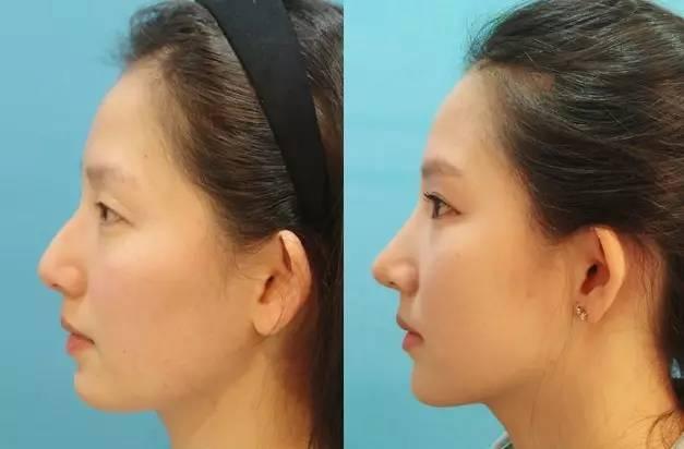 什么是综合隆鼻啊?