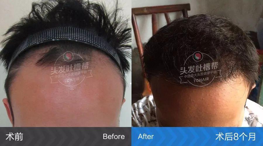 植发后还会再脱发吗?