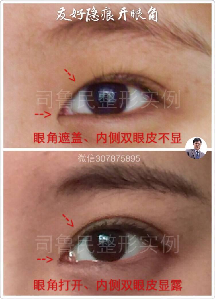 开眼界需要怎么护理不会留疤呢?