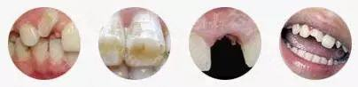牙齿畸形、色素牙、牙齿缺失、断牙