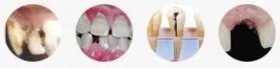 龋齿、牙髓病、牙周病、牙齿缺失