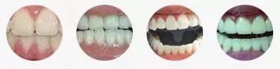 改变牙齿色泽