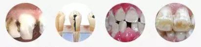 龋齿、牙髓病、牙周病、色素牙