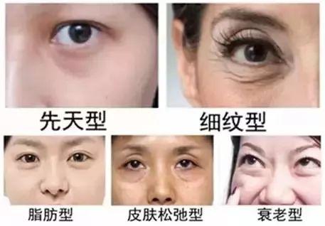 哪种祛眼袋的效果不反弹呢?