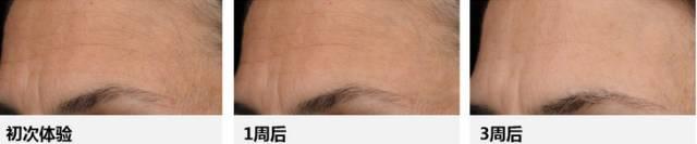 果酸焕肤会让皮肤变敏感吗?