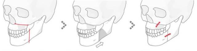 哪里可以做突嘴矫正呢?