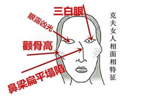 眼睑下至手术是什么,想去做下至手术啊!哪里可以做