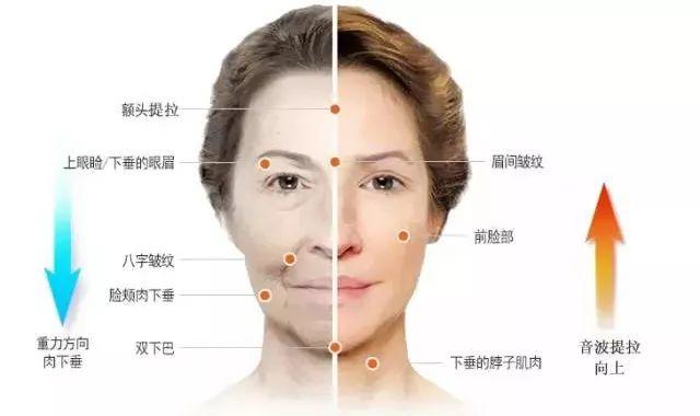 切开双眼皮和埋线双眼皮的区别在哪里?整全脸要多少钱?