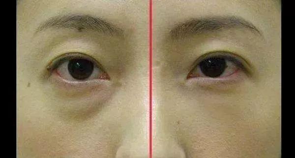 哪种祛眼袋的效果比较好呢?