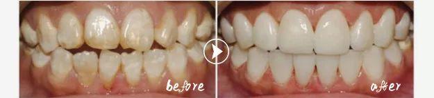 冷光美白后牙齿会变得敏感吗?