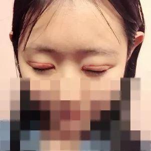 双眼皮多久可以彻底消肿?