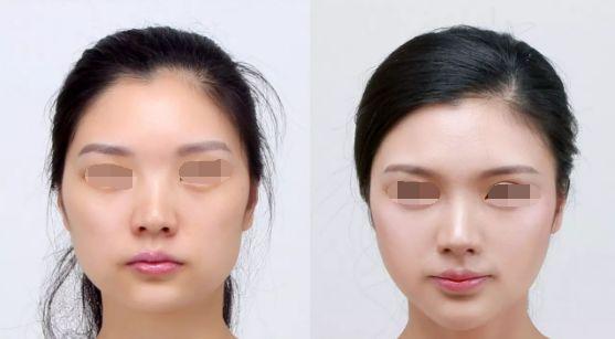 打瘦脸针一般多久可以见效?