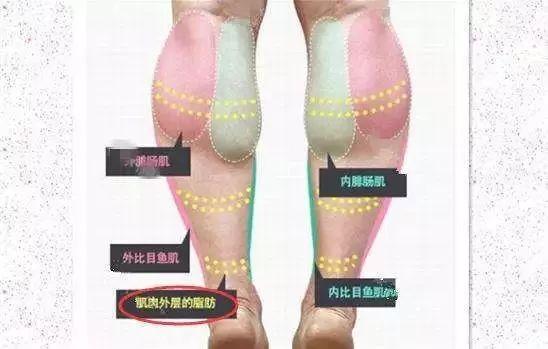 瘦腿针会反弹吗?