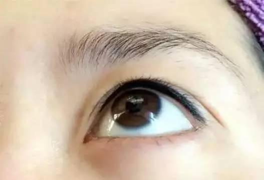 纹美瞳线对眼睛有什么伤害吗?