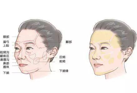 面部脂肪填充效果怎么样?