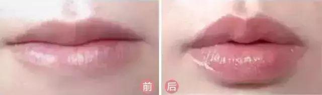 玻尿酸丰唇有没有恢复期?