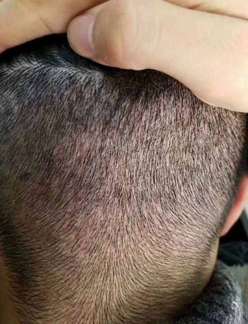 一般植发要多少钱?