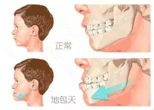 还有一类跟骨性or牙性相关的地包天问题