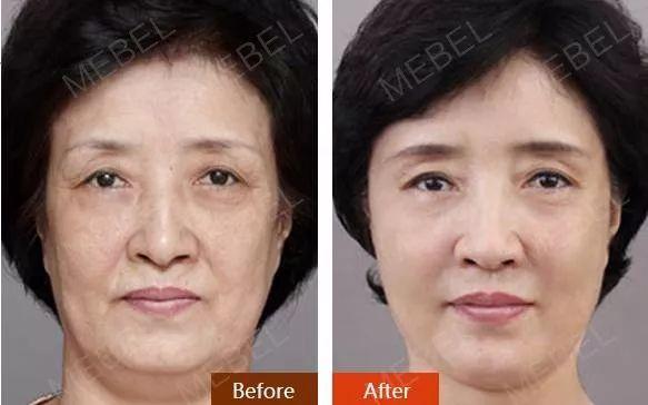 面部线雕有什么后遗症吗?