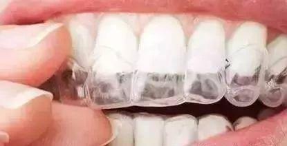 牙齿矫正有什么后遗症吗?