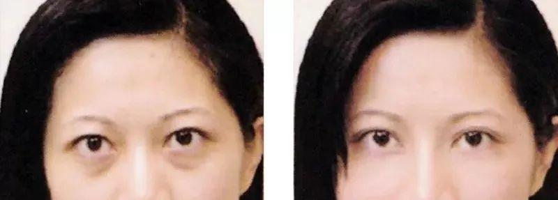 激光可以彻底去除眼袋吗?
