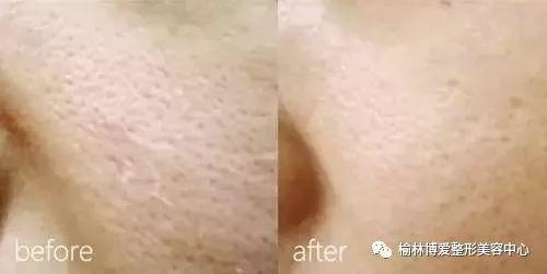 水光注射可改善什么肤质问题?