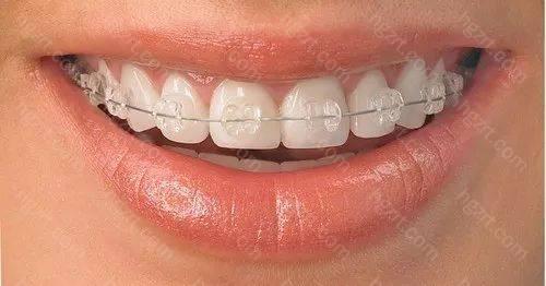 2)陶瓷牙套