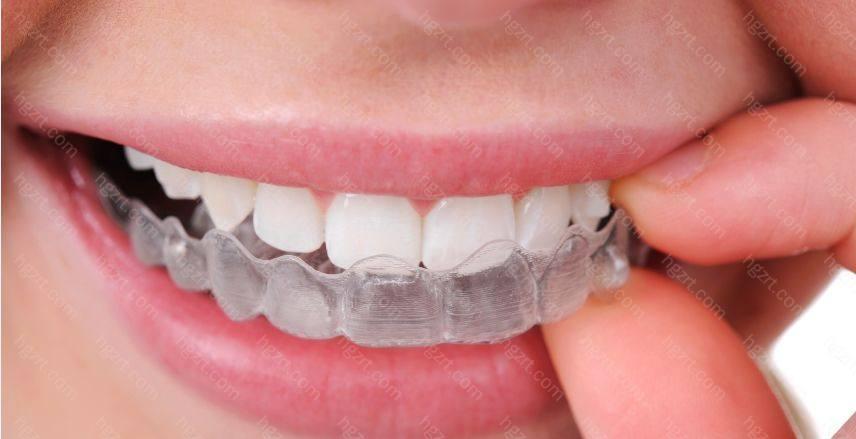 3)隐形牙套