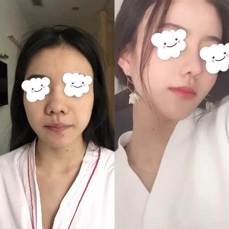 假体隆鼻后多久可以消肿?