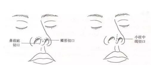 一般位于鼻小柱或鼻翼处