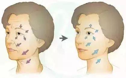 全脸埋线提升的效果如何?